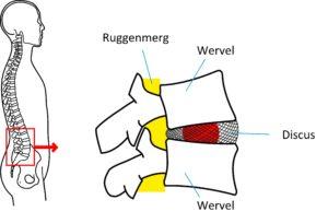 De tussenwervelschijf, ook wel discus genoemd, bevindt zich tussen twee wervels. Dit is de lokatie waar een hernia kan optreden.