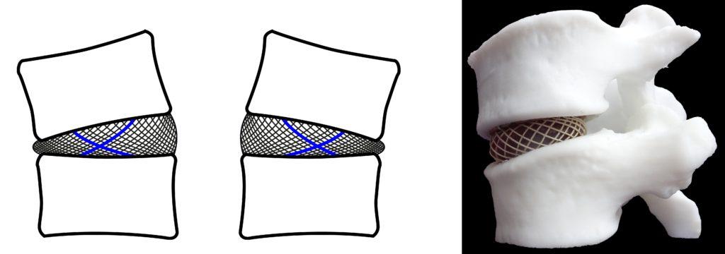 Twee modellen waarin de discus (tussenwervelschijf) is afgebeeld. De derde tekening is een 3D-model.
